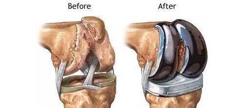 diz protezi ameliyatı nasıl olur