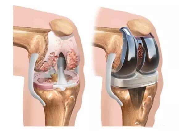 diz protezi ömrü ne kadardır